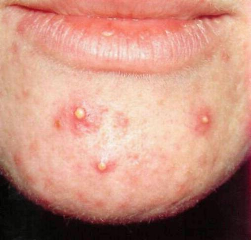 Перегиб в теле желчного пузыря у ребенка лечение