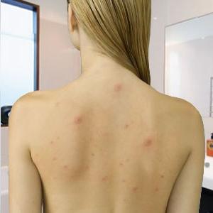 Уход за лицом при проблемной и чувствительной кожей