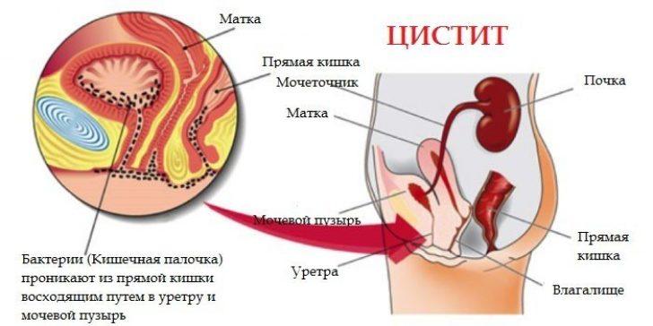 Воспаление мочевого пузыря симптомы анальный секс