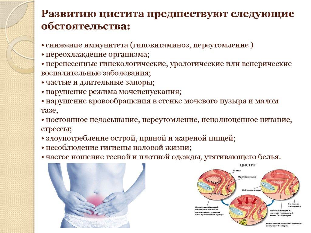 Как вылечить цистит быстро у беременных