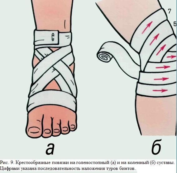 Наложение повязки при переломе коленного, голеностопного суставов как сделать настойку из серени при боли в суставах