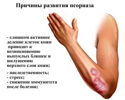 как проводится операция по замене тазобедренного сустава