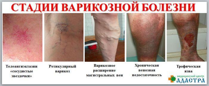 Варикоз паховой области симптомы